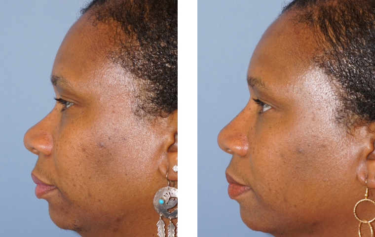Non Surgical Rhinoplasty1
