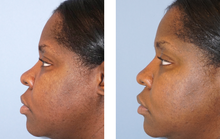 Non Surgical Rhinoplasty2